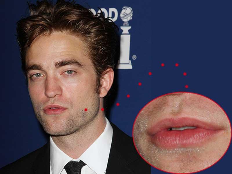 Chirurgia uomo: l'attore Robert Pattinson