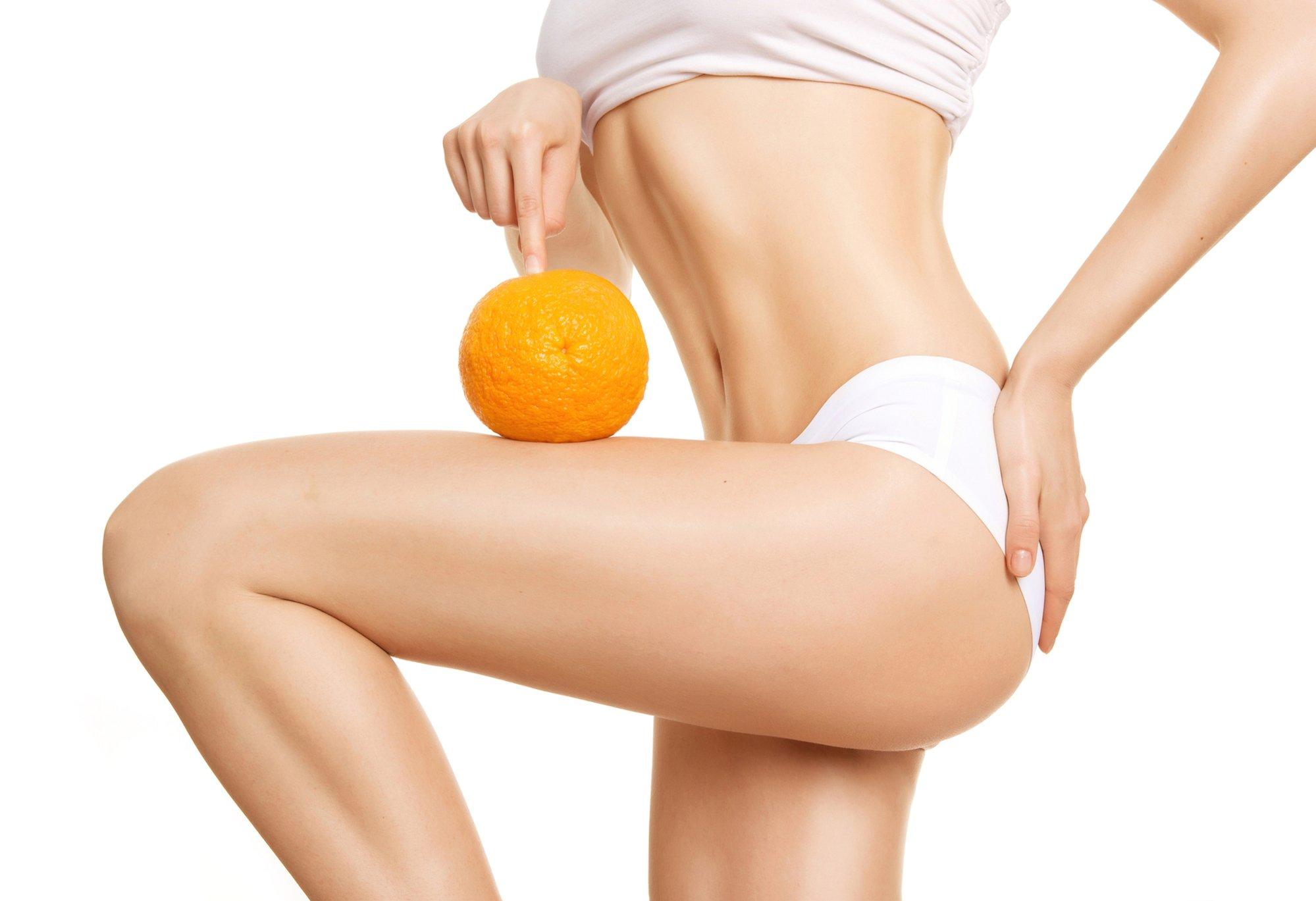 Foto di gambe con buccia d'arancia