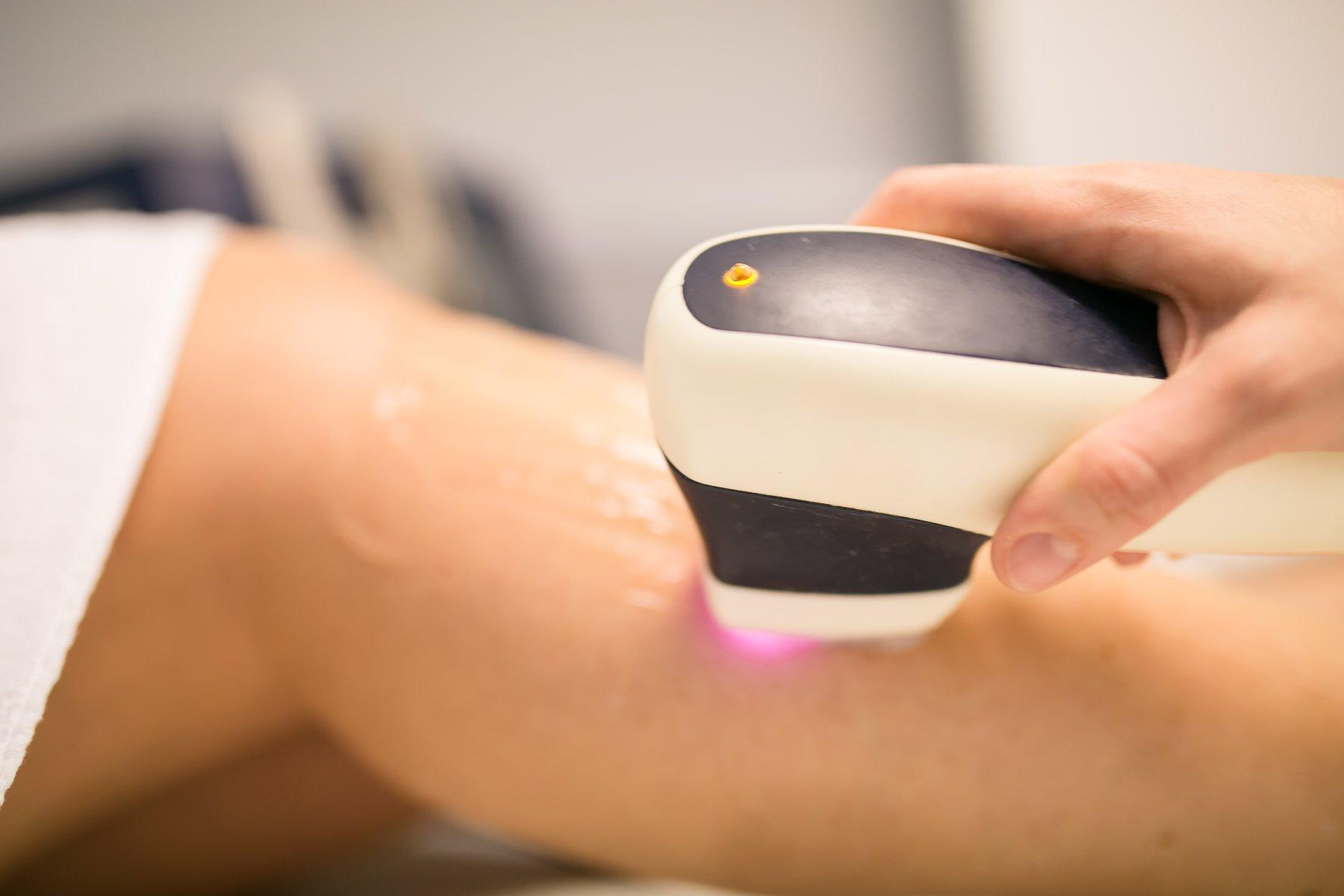 L'epilazione permanente laser