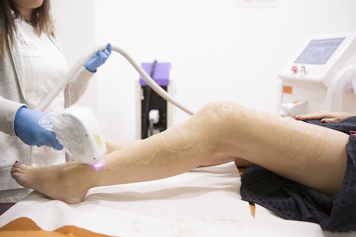 Foto di epilazione laser gambe