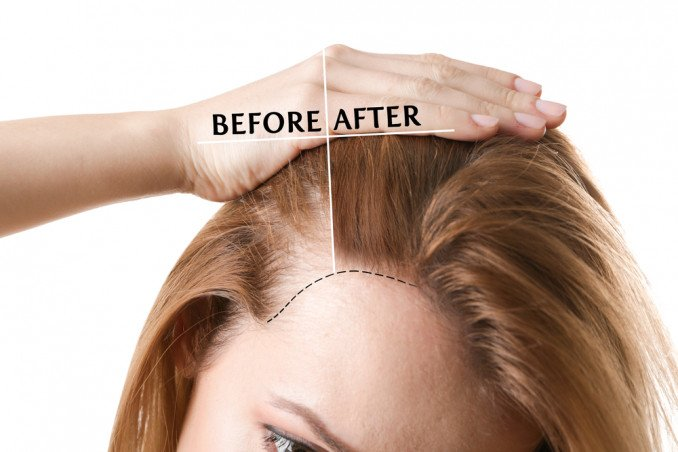 Foto di patch cutanea capelli